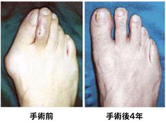 外反母趾手術の前後像
