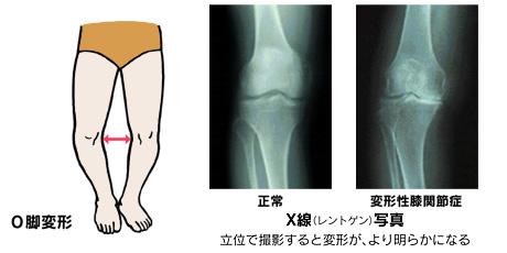 変形性膝関節症の原因と病態